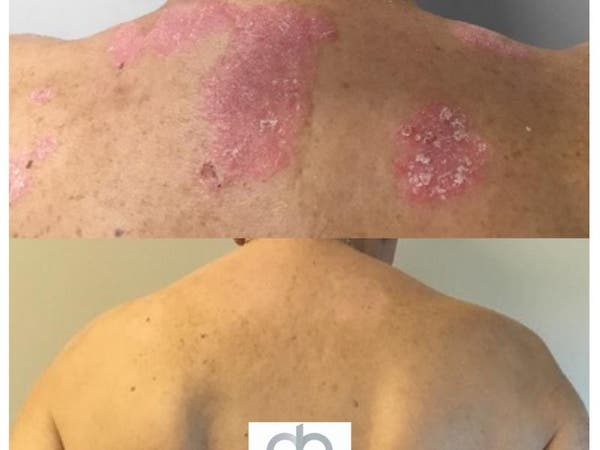 Dermatology Physicians of Connecticut Offers Cutting-Edge Biologic Therapies for Eczema and Psorias - Ledyard, CT Patch