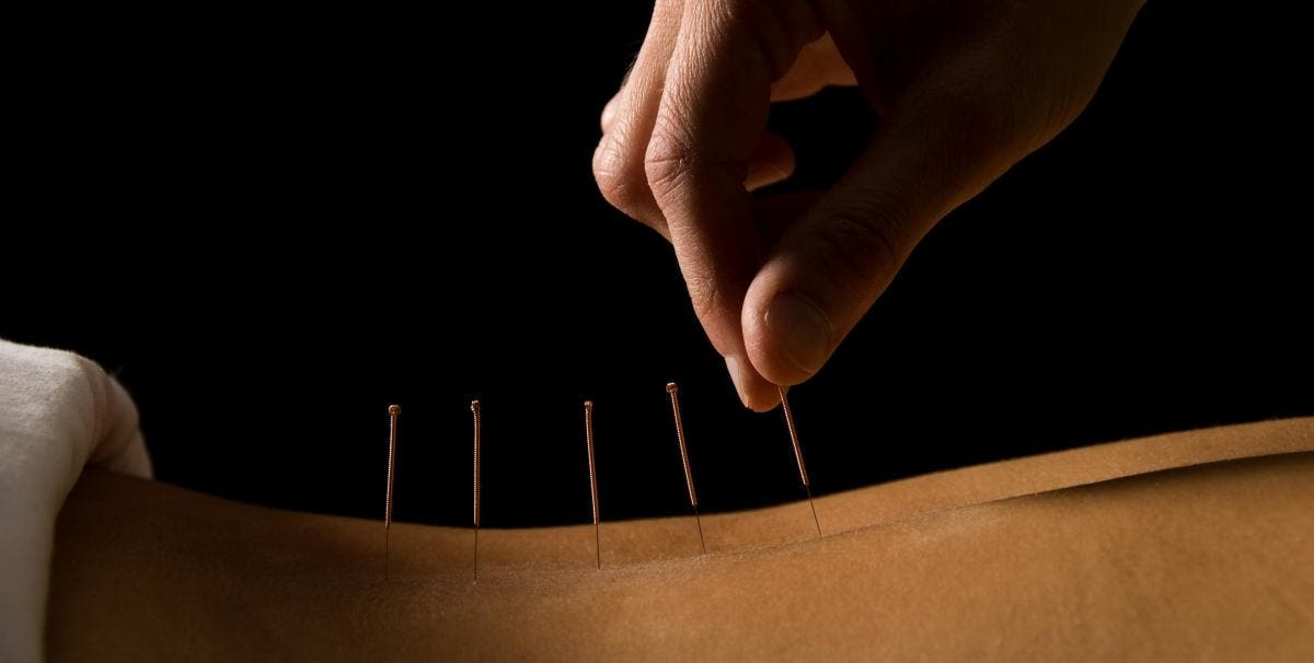 Sep 11 | Community Acupuncture | Prospect Heights, NY Patch