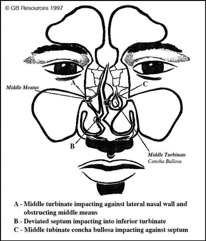 When Is a Sinus Headache Really a Nasal Headache? | Lakeville, MN Patch