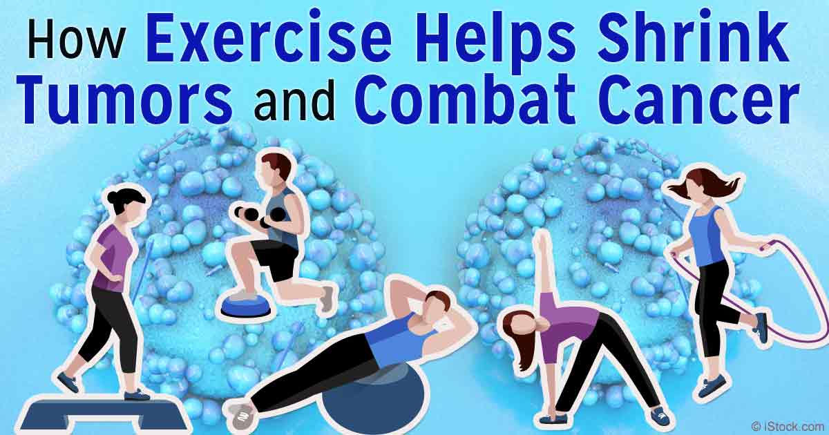 Exercise Helps to Shrink Tumors & Combat Cancer   Ramsey, NJ Patch
