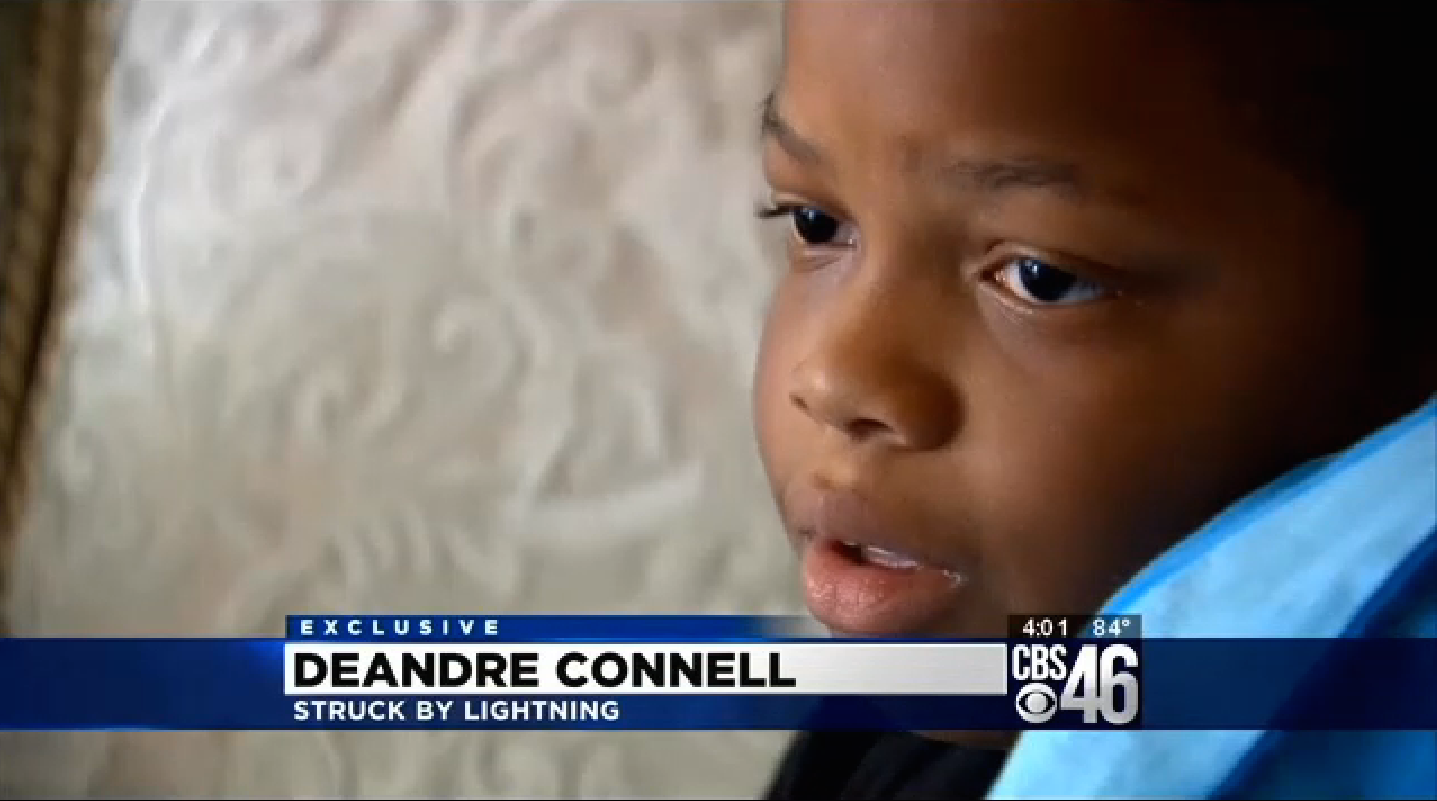 Really Scary:' 9-Year-Old Boy Struck by Lightning | Dunwoody