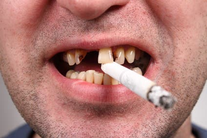 Does Smoking Reversely Affect or Slow Down Orthodontic