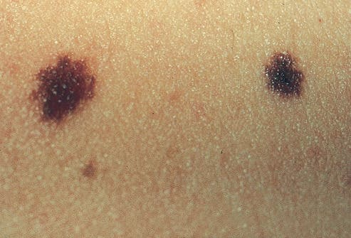 Even Having Normal Moles Quadruples Your Risk of Melanoma