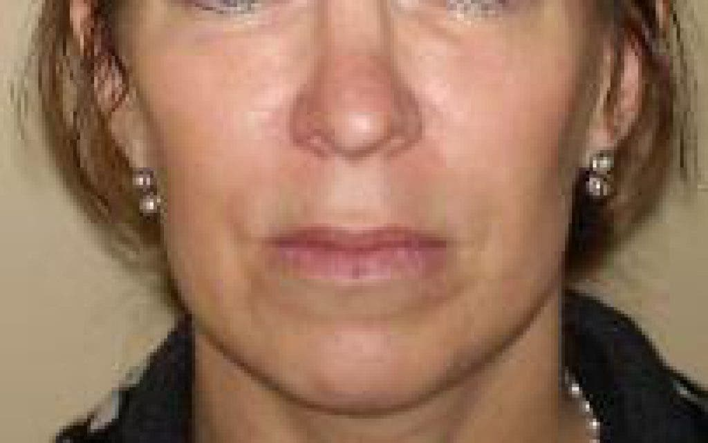 What is the difference between Juvederm and Botox | Great