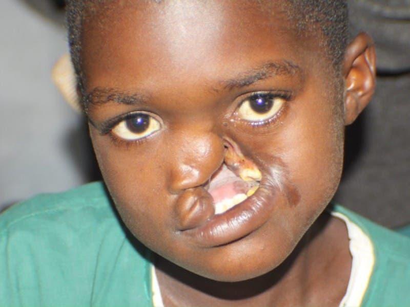 Charity treating facial deformities