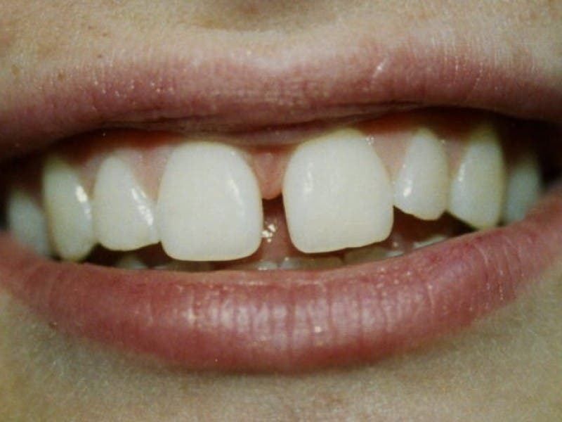 1; Why Do Teeth Grow Gaps?