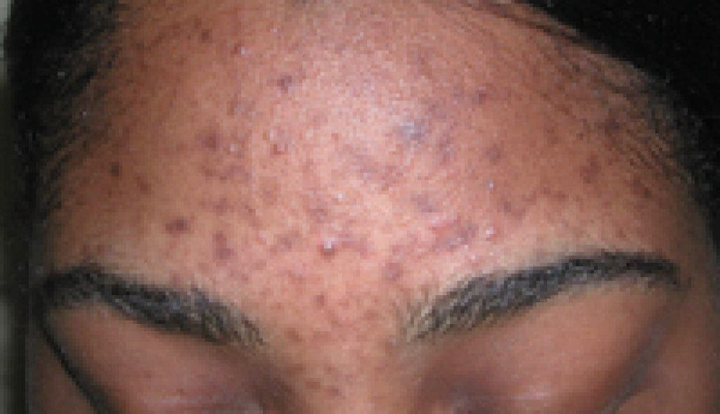Acupuncture treatments for Acne: Is it really worth your ...