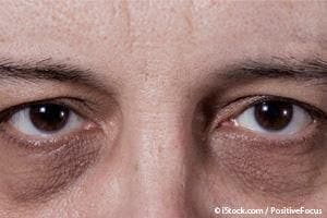 c75bb0abdaf952 What Causes Dark Circles Under the Eyes? | Ramsey, NJ Patch