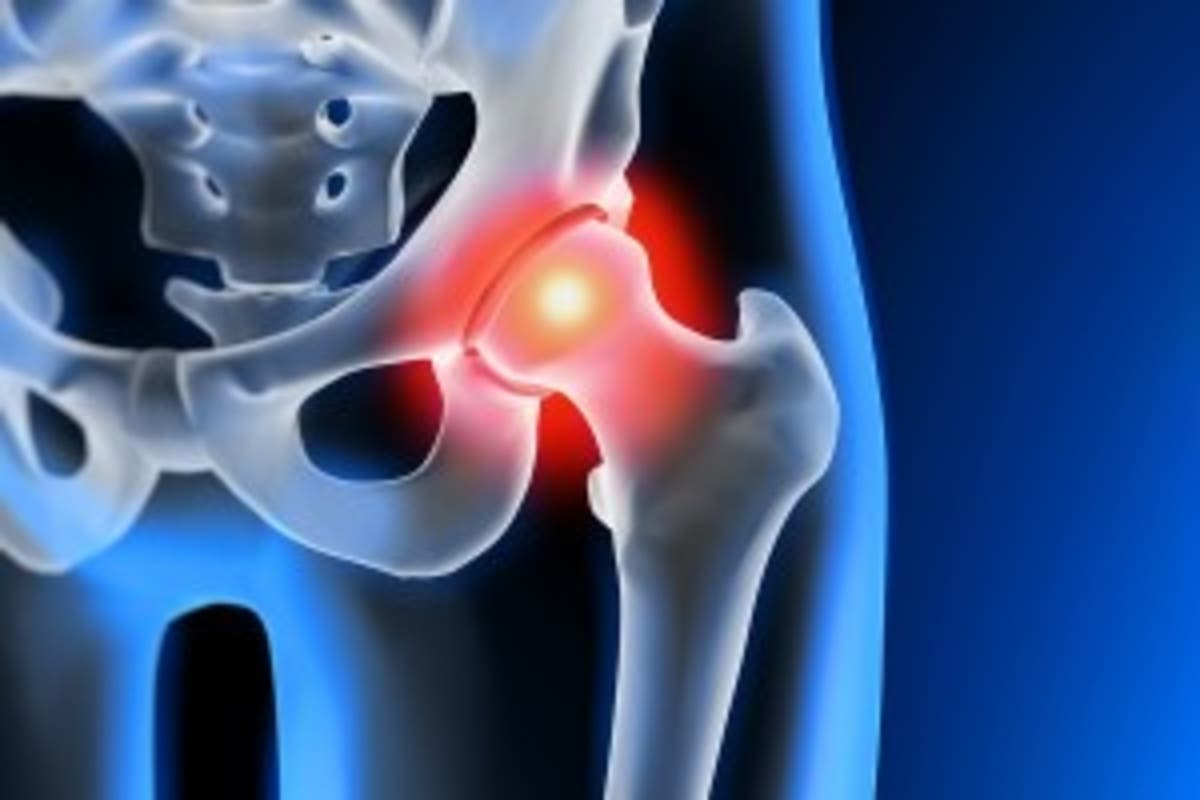 Hip Replacement Surgery >> Saddleback Medical Center Offers Less Invasive Hip