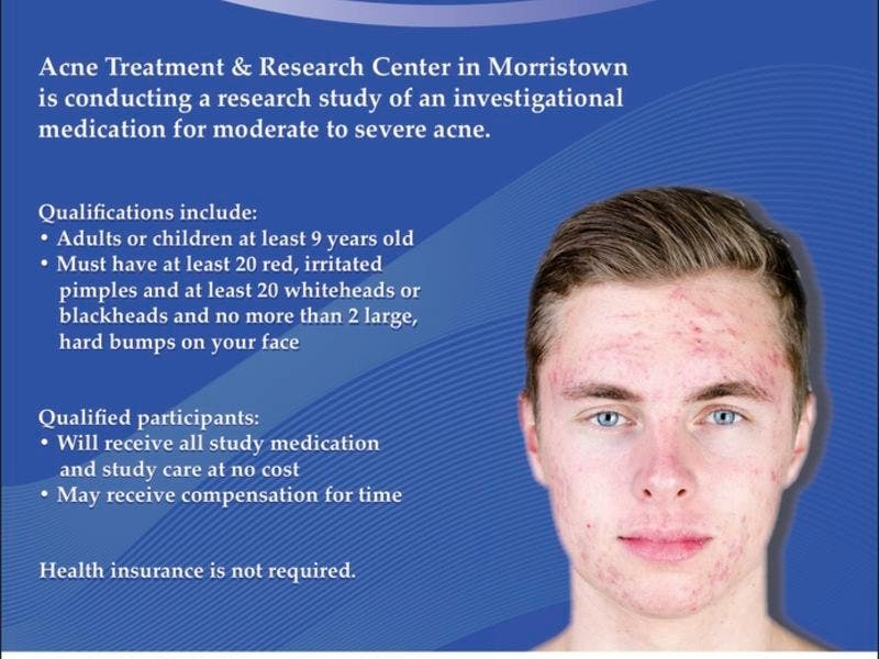 Atlantic Health System's Acne Treatment and Research Center