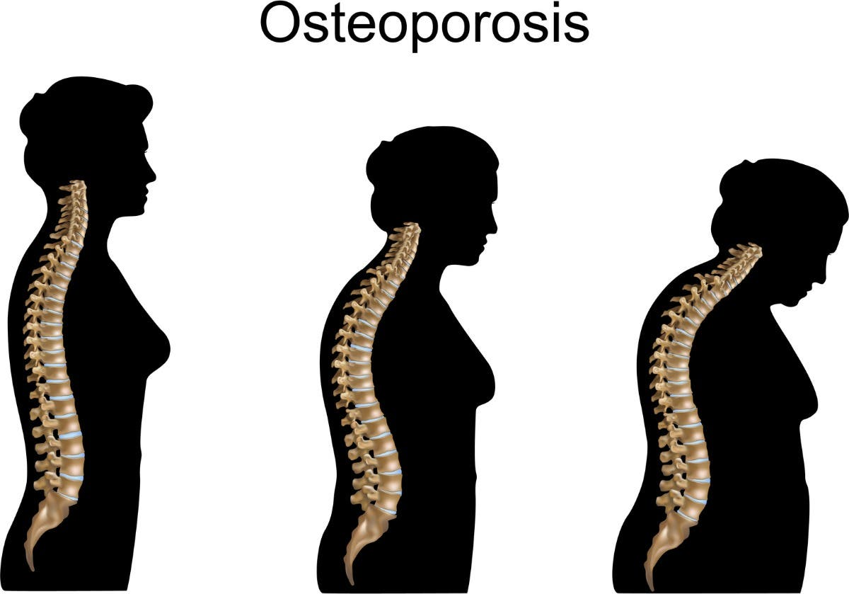 Local Event: WEBINAR: Osteoporosis: Prevention, Treatment & Management