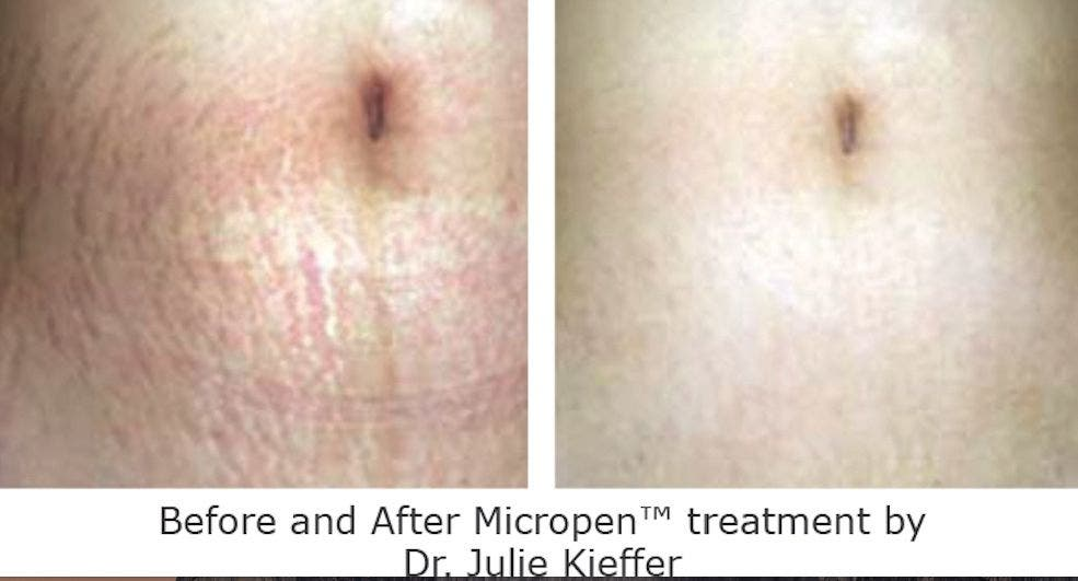 Stretch Marks Removal Treatment in Chicago South Loop