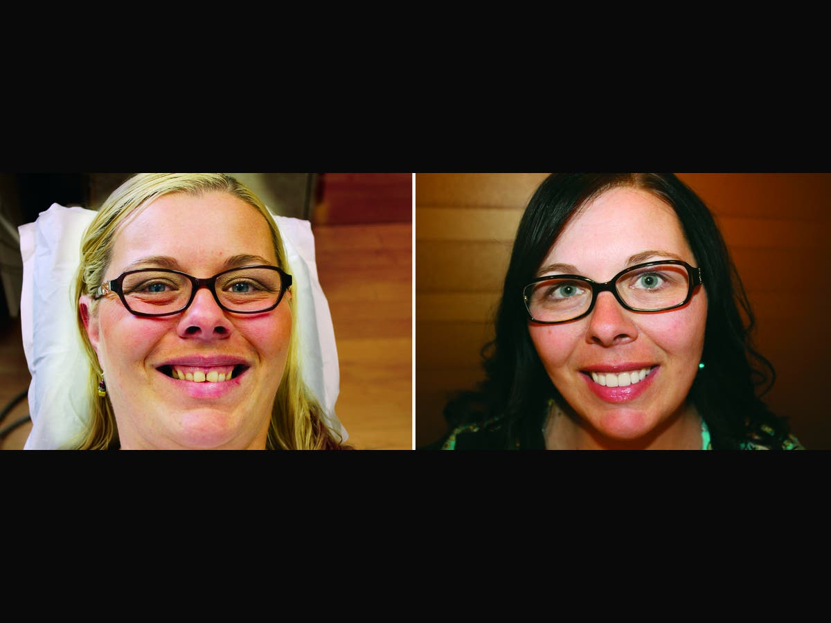Imagine Dental Arts – Free Mother's Day Smile Makeover Contest