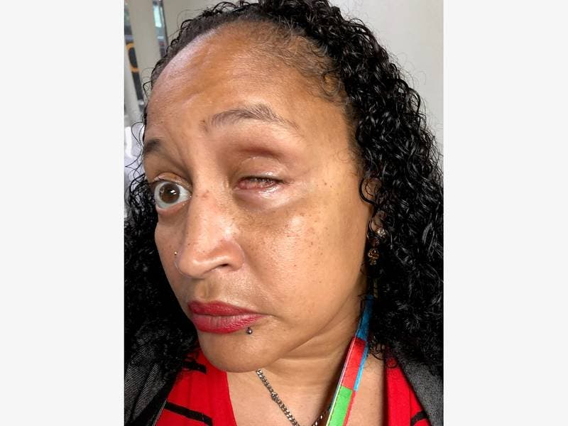 NYC Woman Who Lost Eye After Brutal Arrest Still Faces Charges
