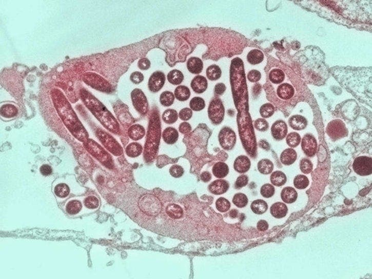 Legionella Found In Water Supply At Two Bridges Condo