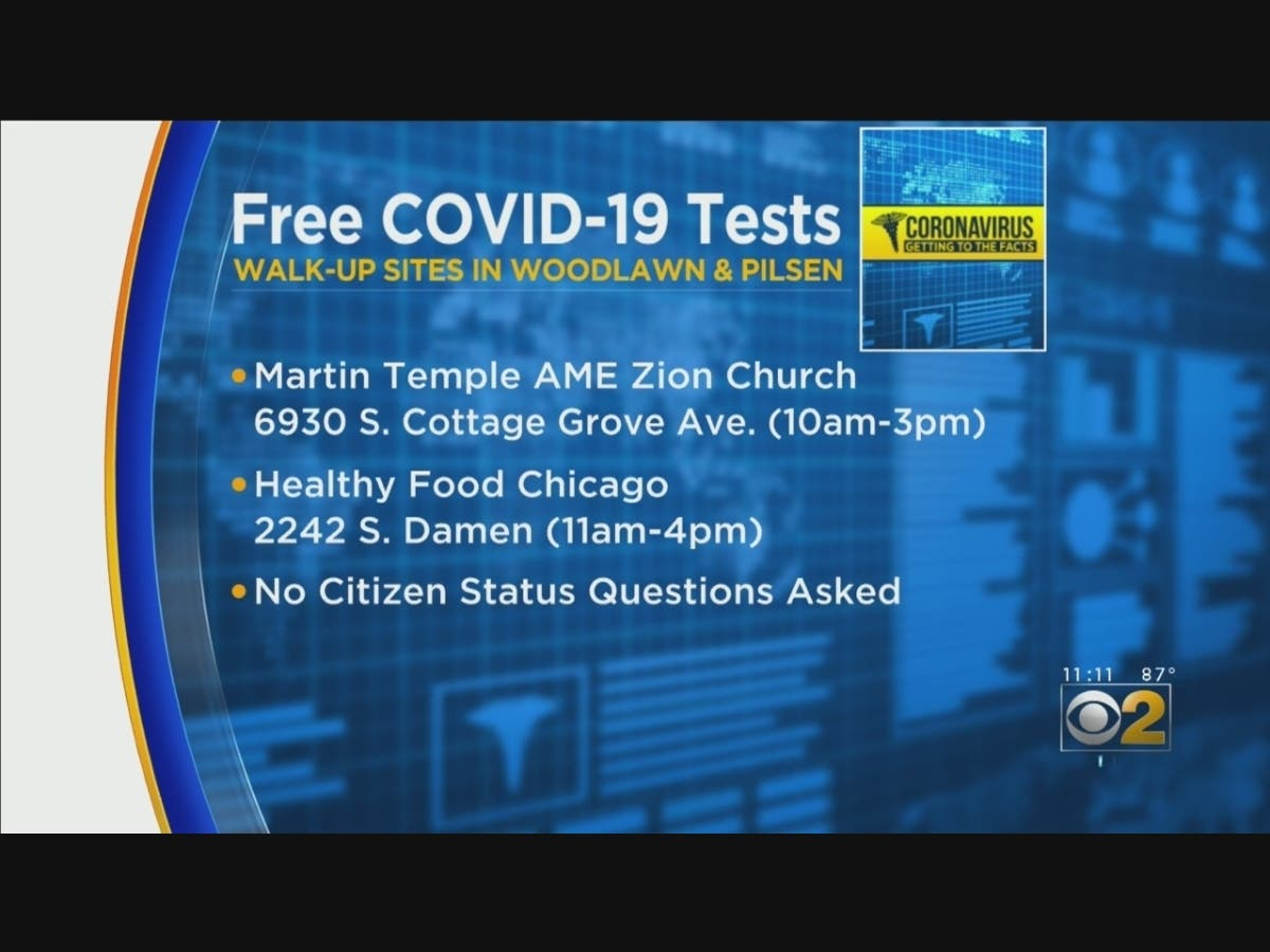 Mobile Covid 19 Testing Lab Visiting Pilsen Woodlawn Monday Chicago Il Patch