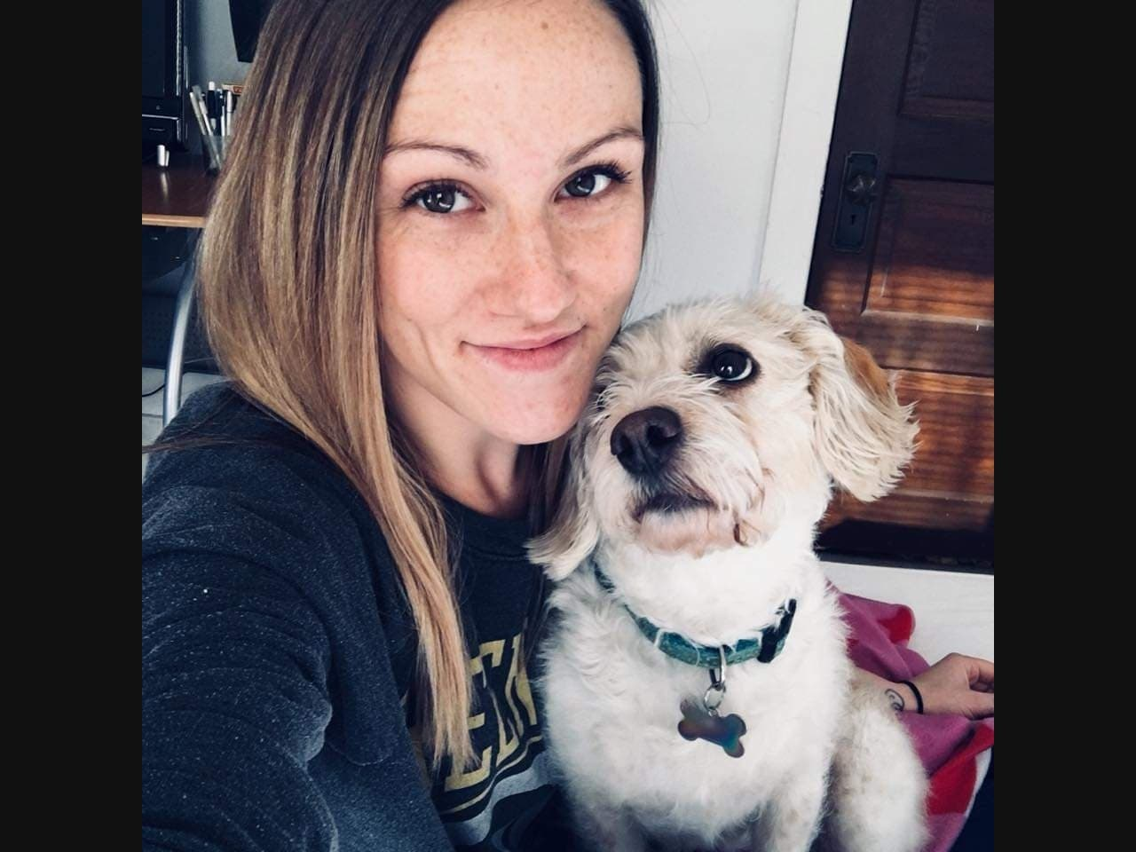 Fundraiser Set For Woman Set On Fire In Waukesha