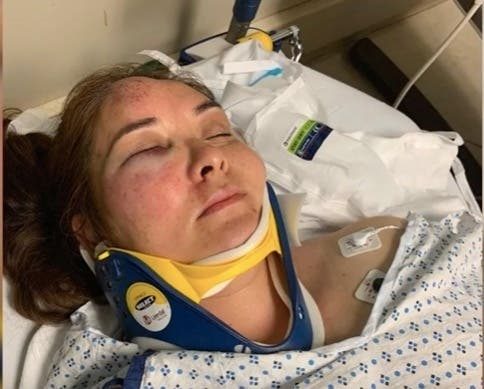 NJ Mom Knocked Out By 13-Year-Old Who Bullied Her Son: Reports