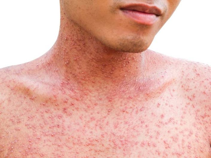 Measles Outbreak Hits Los Angeles County