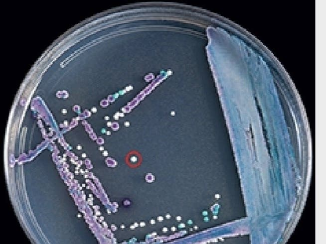 Flipboard: Parliament: 16 cases of Candida auris in ...
